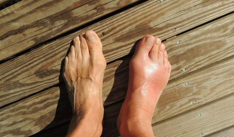 antidouleures des pieds